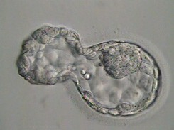 Day 5 blastocyst – hatching