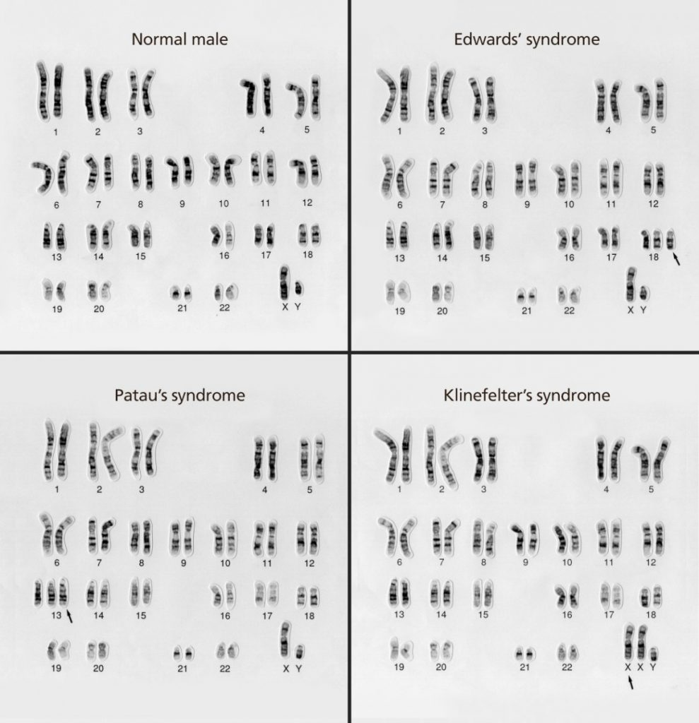 Karyotypes with different numerical abnormalities