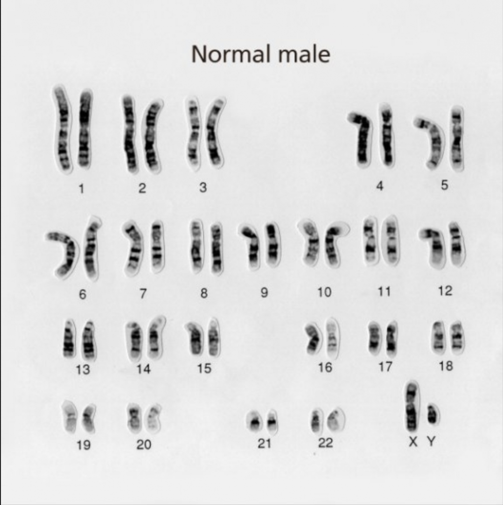 Karyotype of normal chromosome